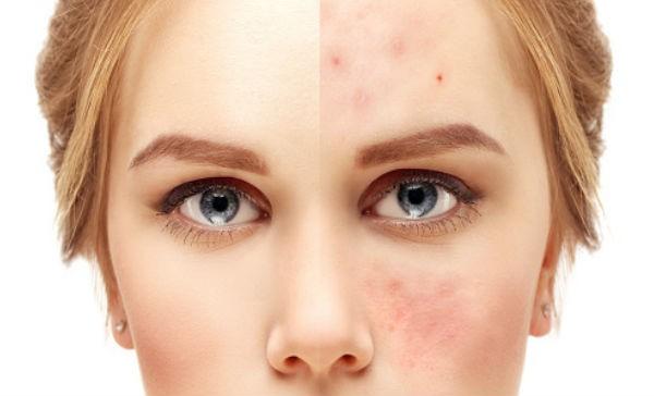 eliminar acne con colageno