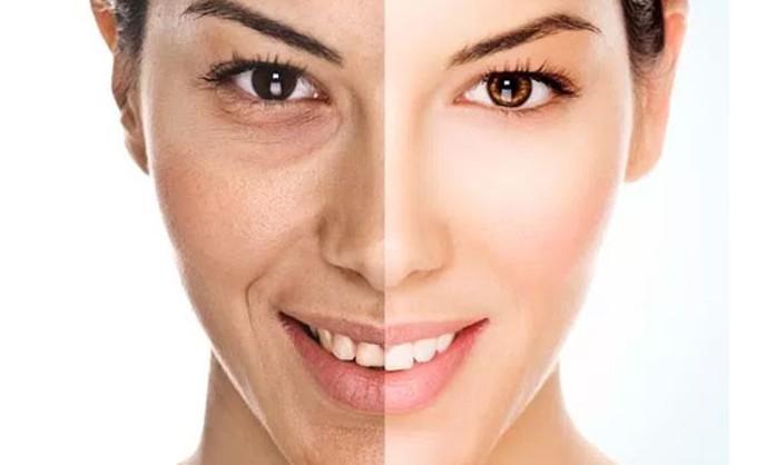 eliminar arrugas con colageno