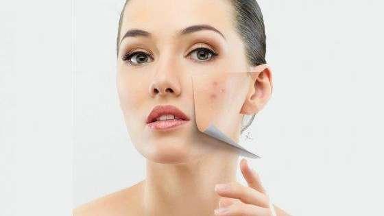 evitar acne con colageno
